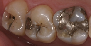 silver amalgam before removal